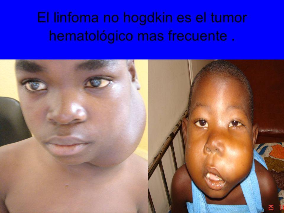El linfoma no hogdkin es el tumor hematológico mas frecuente .