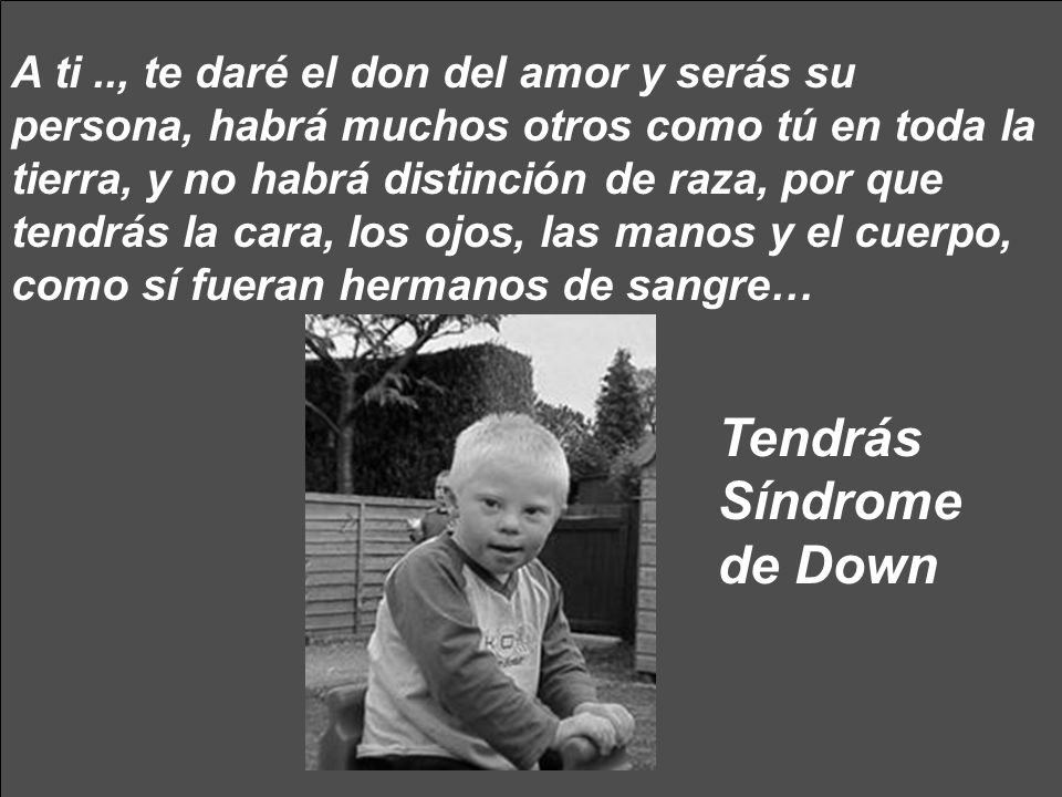 Tendrás Síndrome de Down