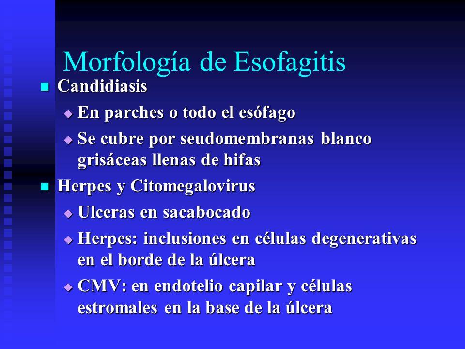 Morfología de Esofagitis