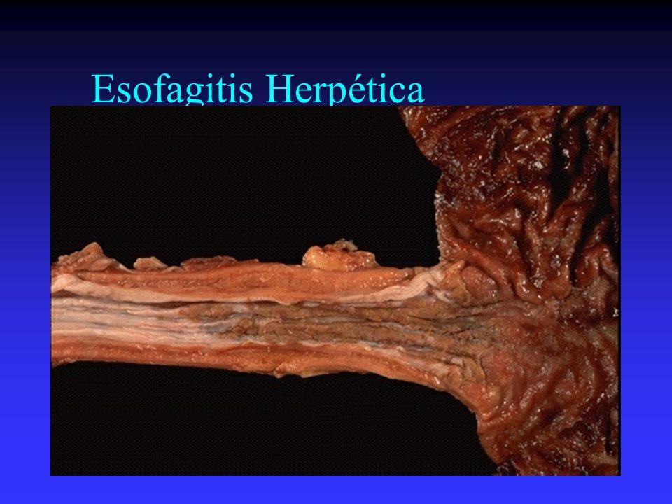 Esofagitis Herpética