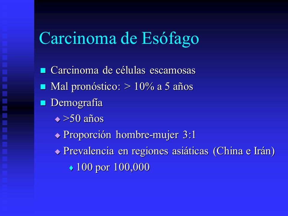 Carcinoma de Esófago Carcinoma de células escamosas