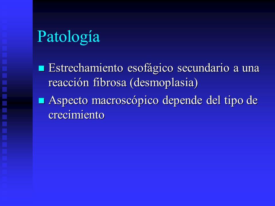 Patología Estrechamiento esofágico secundario a una reacción fibrosa (desmoplasia) Aspecto macroscópico depende del tipo de crecimiento.