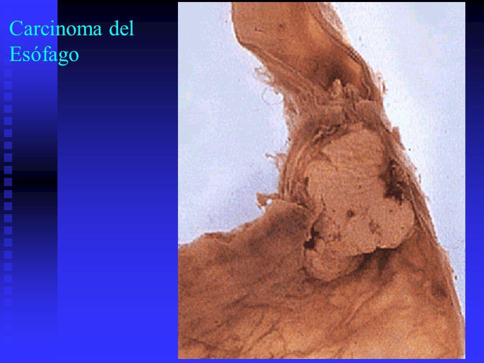 Carcinoma del Esófago