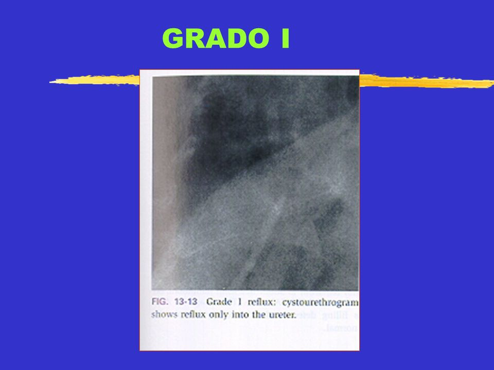 GRADO I