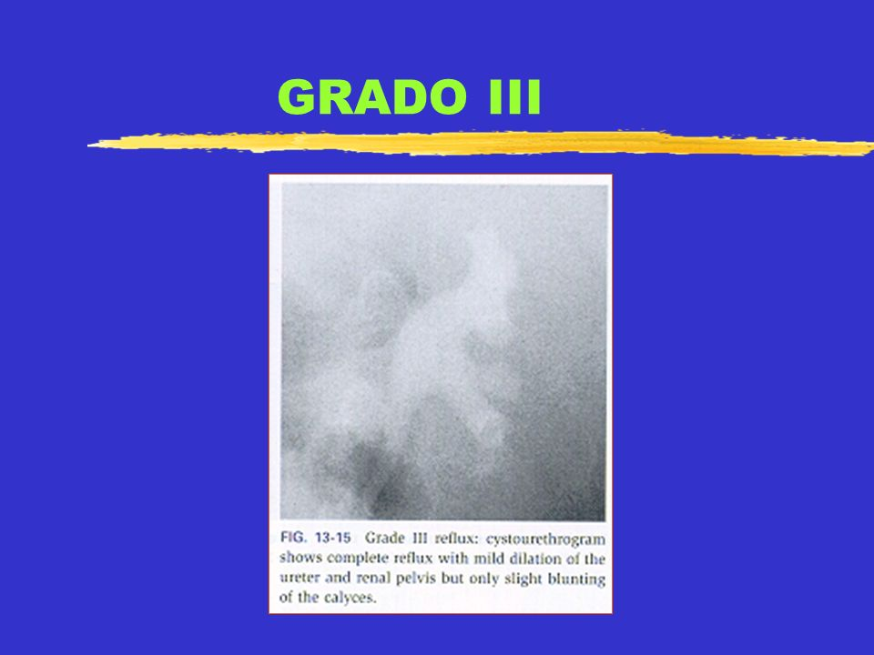 GRADO III