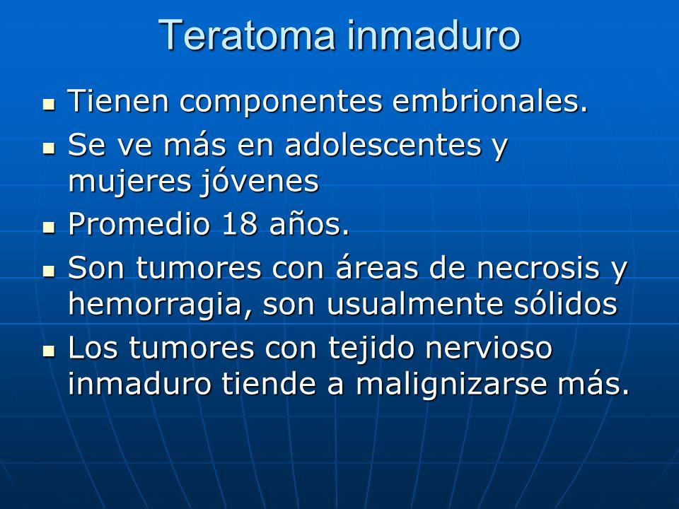 Teratoma inmaduro Tienen componentes embrionales.