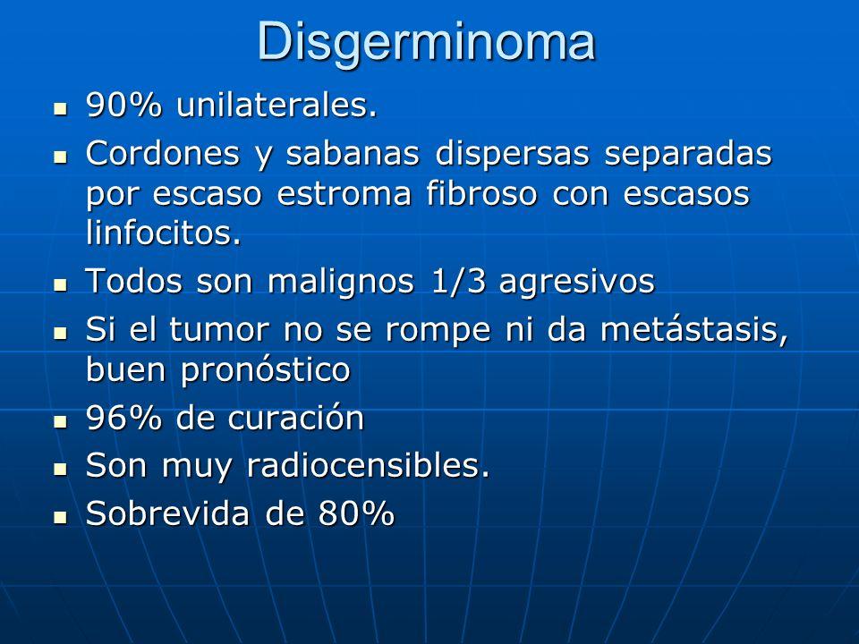 Disgerminoma 90% unilaterales.