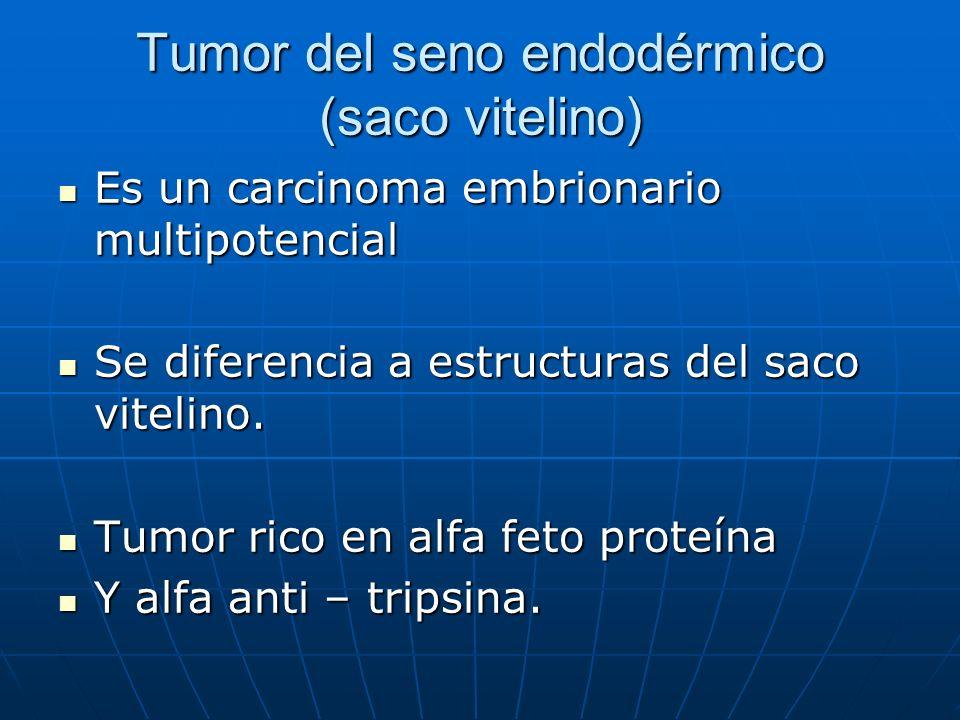 Tumor del seno endodérmico (saco vitelino)