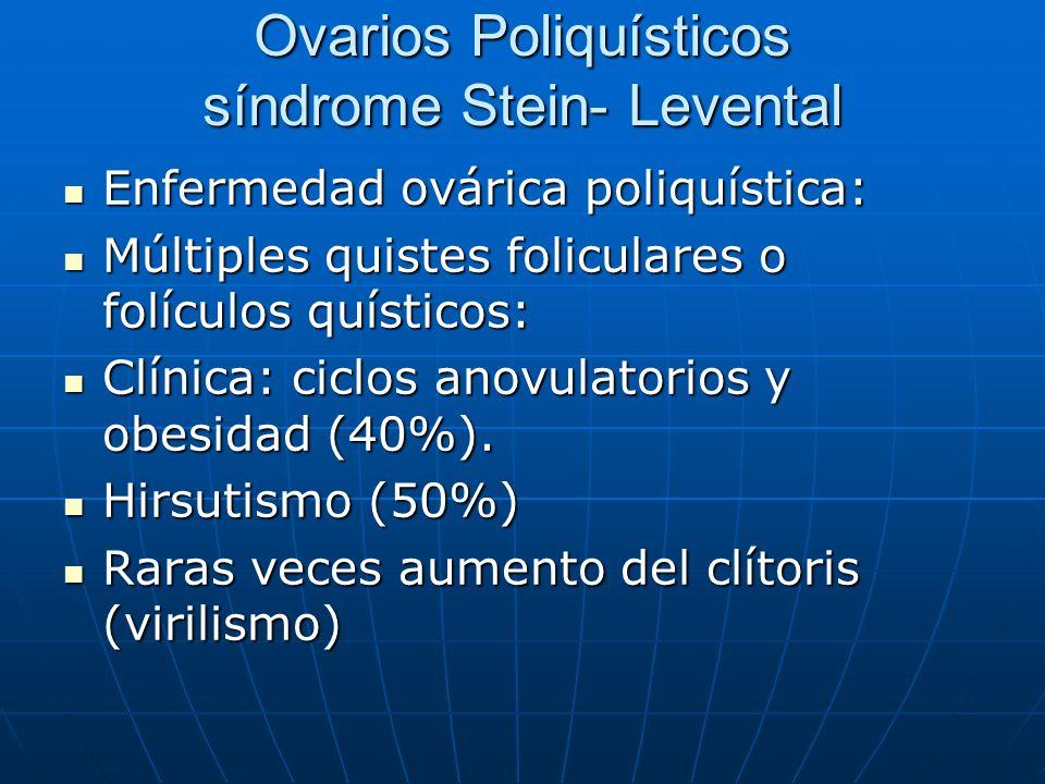Ovarios Poliquísticos síndrome Stein- Levental