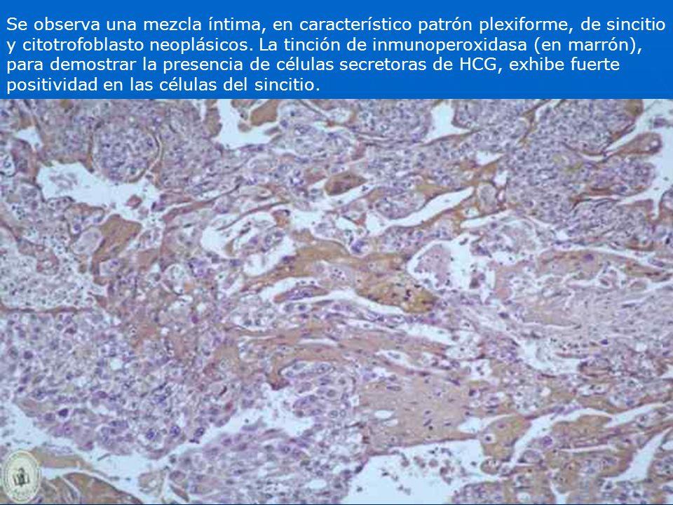 Se observa una mezcla íntima, en característico patrón plexiforme, de sincitio y citotrofoblasto neoplásicos.