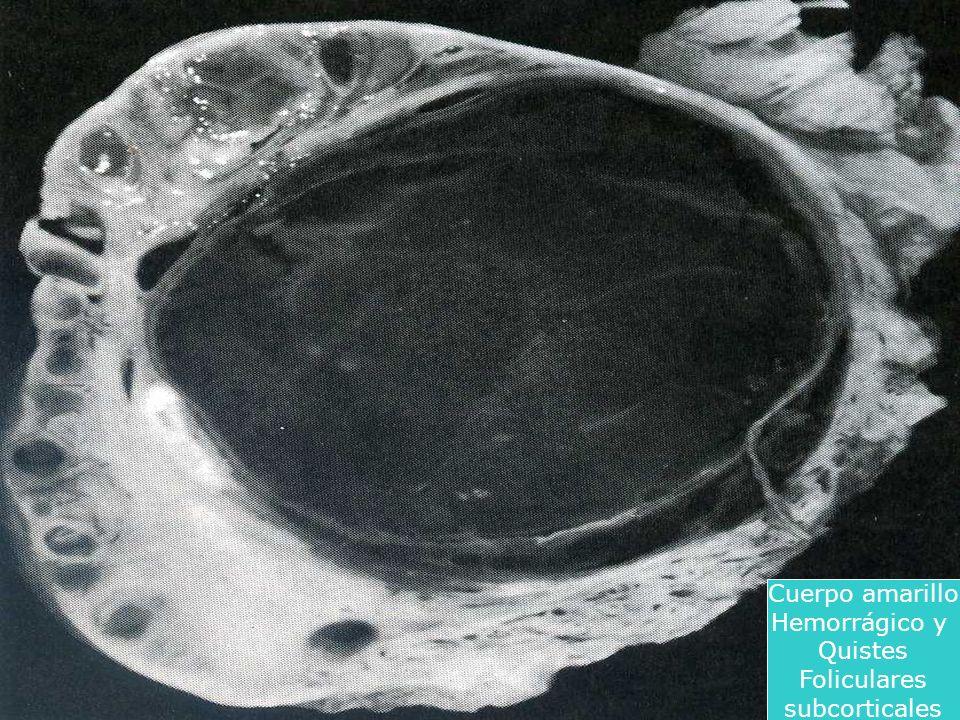 Cuerpo amarillo Hemorrágico y Quistes Foliculares subcorticales