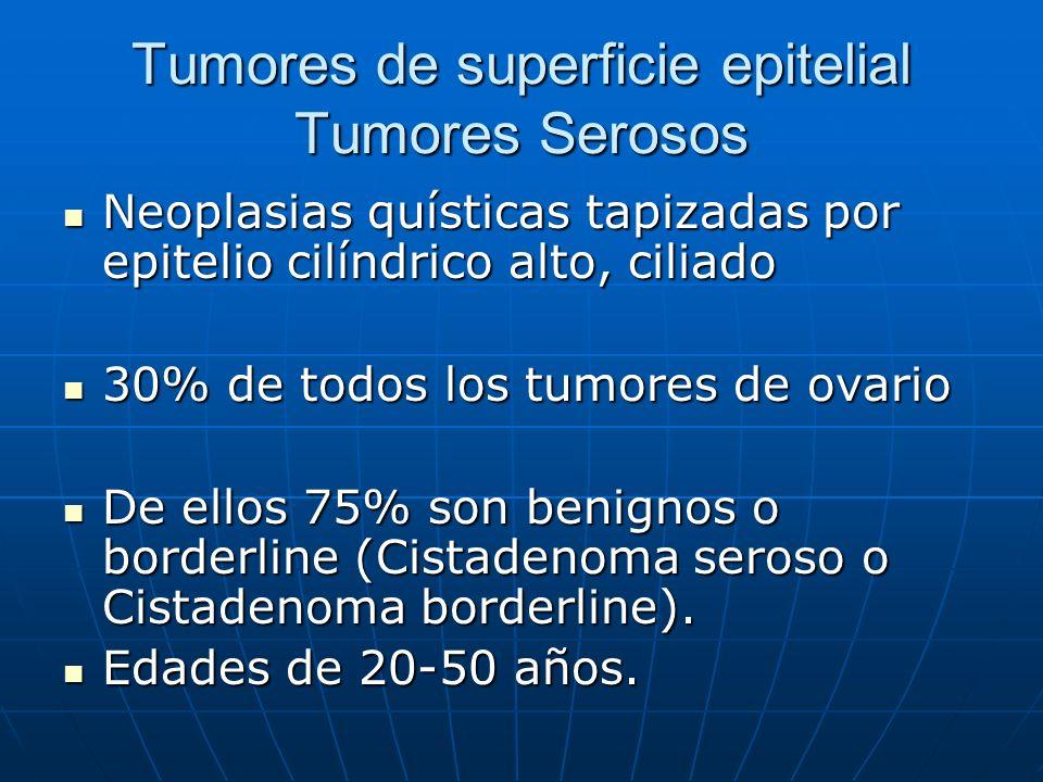 Tumores de superficie epitelial Tumores Serosos
