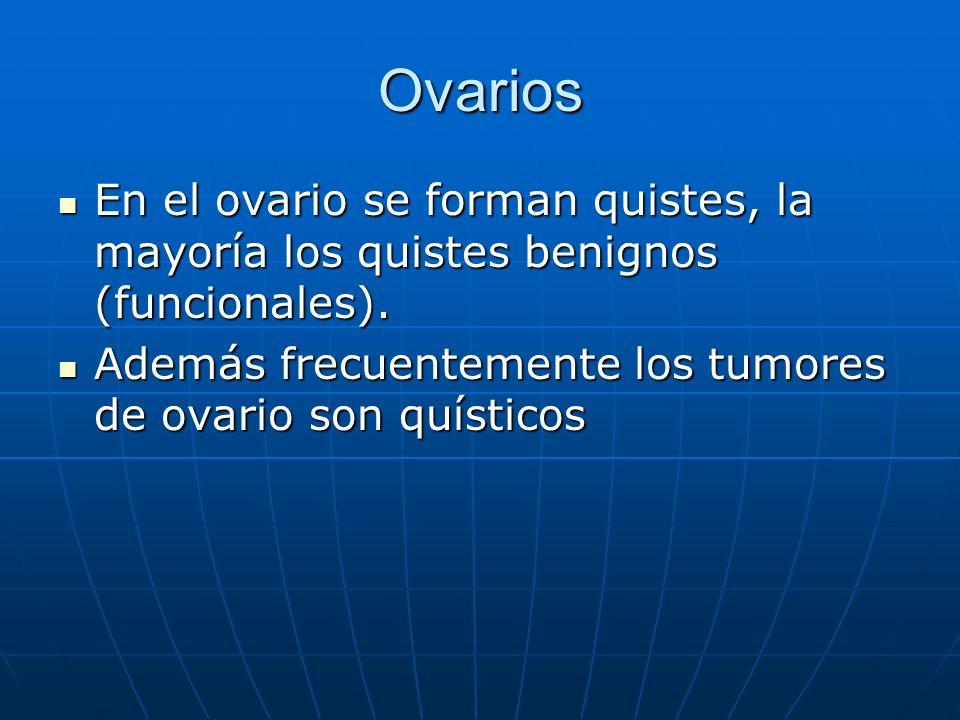 Ovarios En el ovario se forman quistes, la mayoría los quistes benignos (funcionales).