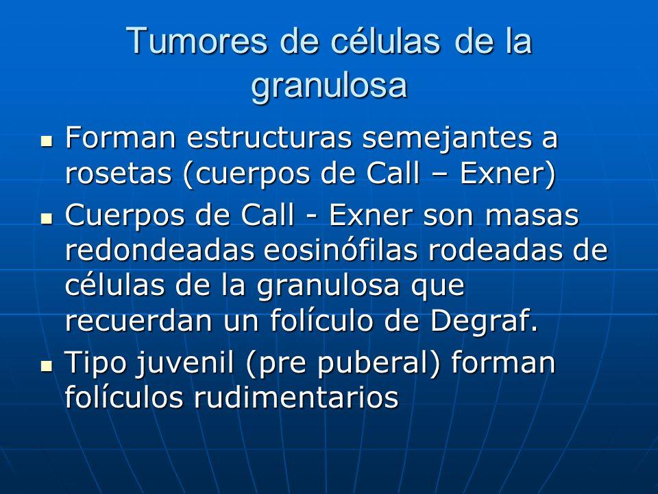 Tumores de células de la granulosa