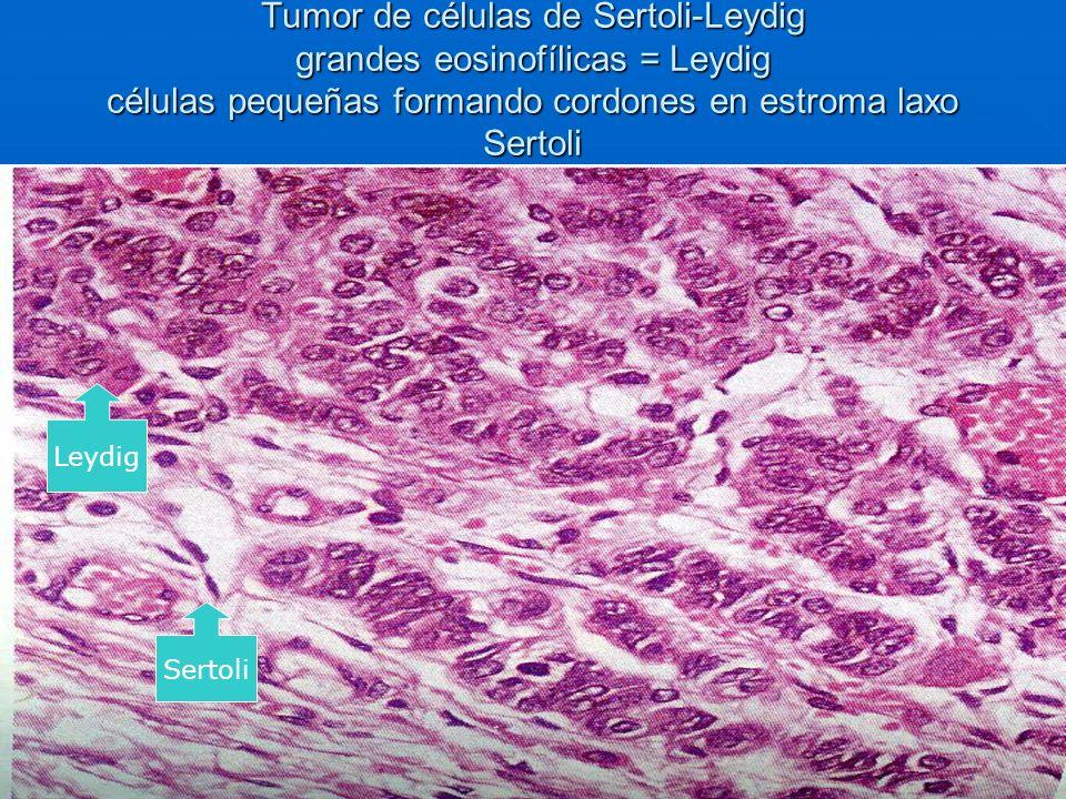 Tumor de células de Sertoli-Leydig grandes eosinofílicas = Leydig células pequeñas formando cordones en estroma laxo Sertoli