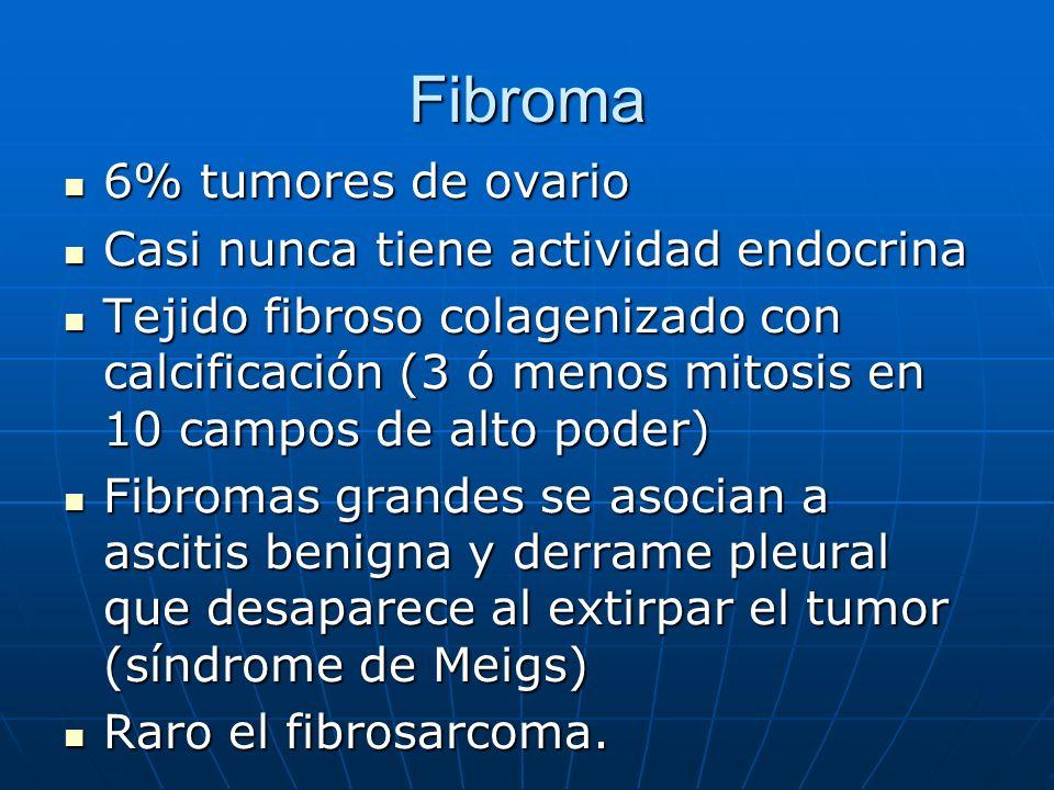 Fibroma 6% tumores de ovario Casi nunca tiene actividad endocrina
