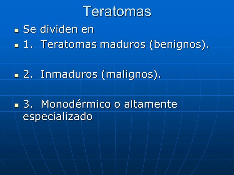 Teratomas Se dividen en 1. Teratomas maduros (benignos).