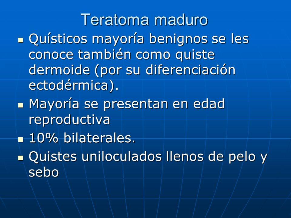 Teratoma maduro Quísticos mayoría benignos se les conoce también como quiste dermoide (por su diferenciación ectodérmica).