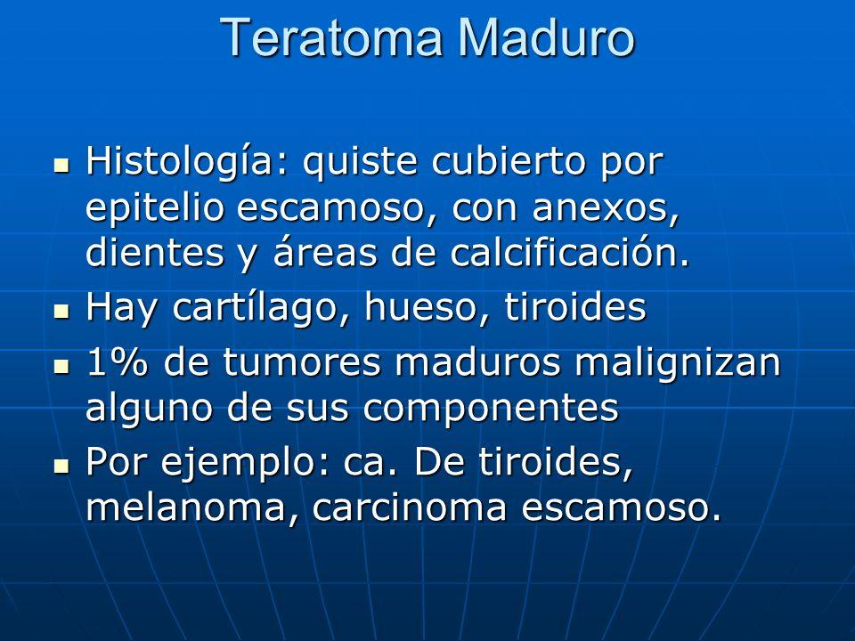 Teratoma Maduro Histología: quiste cubierto por epitelio escamoso, con anexos, dientes y áreas de calcificación.