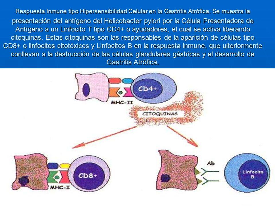 Respuesta Inmune tipo Hipersensibilidad Celular en la Gastritis Atrófica.