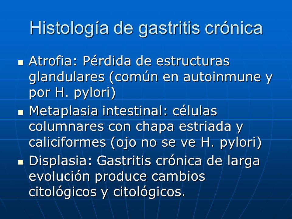 Histología de gastritis crónica