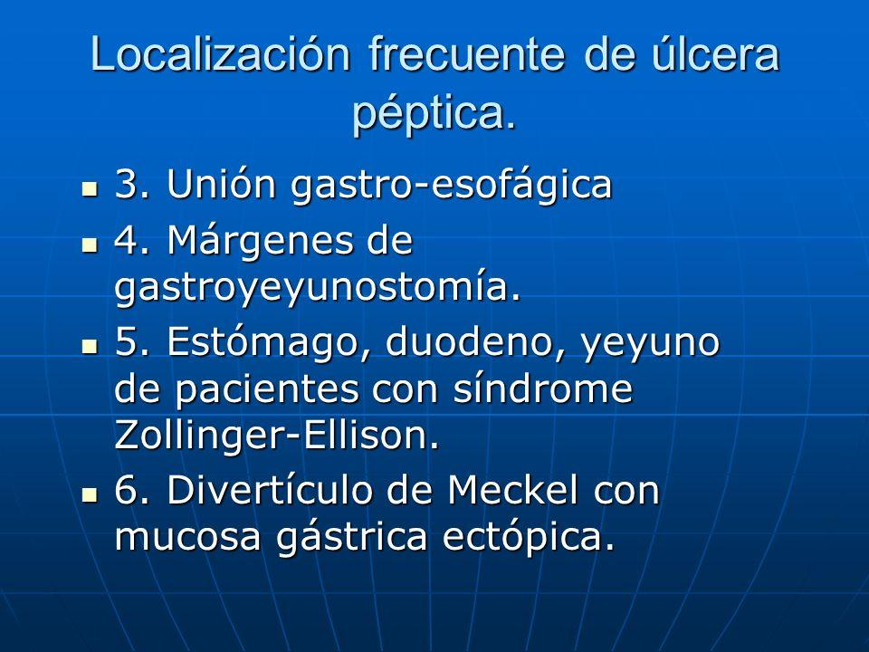 Localización frecuente de úlcera péptica.