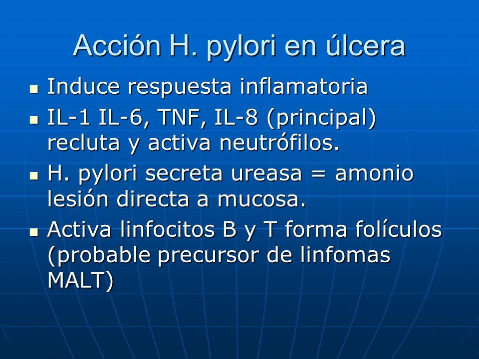 Acción H. pylori en úlcera