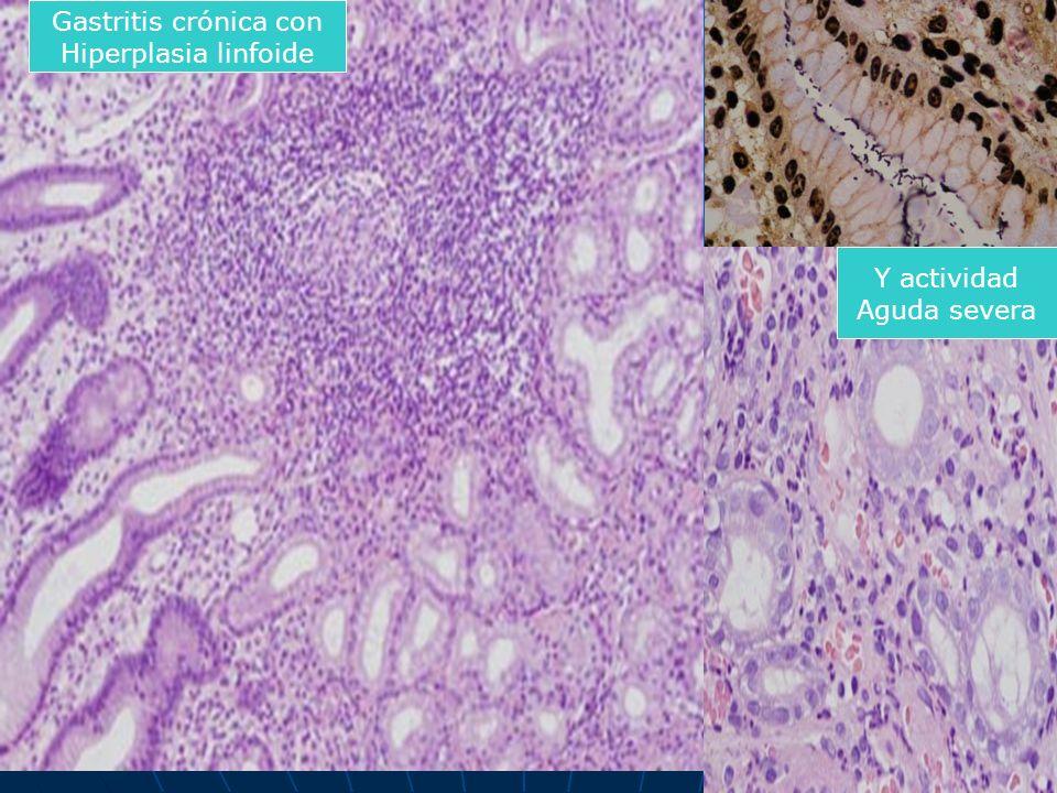 Gastritis crónica con Hiperplasia linfoide Y actividad Aguda severa