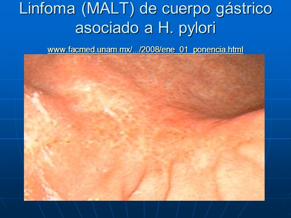Linfoma (MALT) de cuerpo gástrico asociado a H. pylori www. facmed