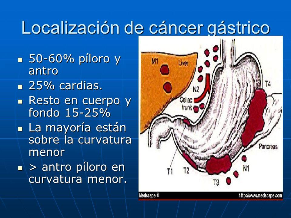 Localización de cáncer gástrico