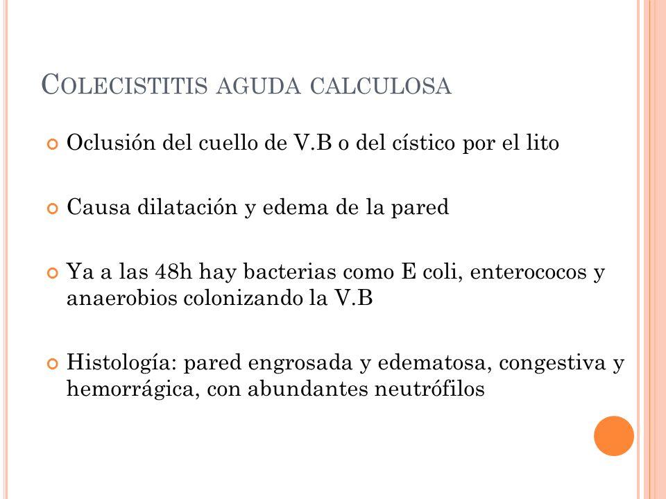Colecistitis aguda calculosa