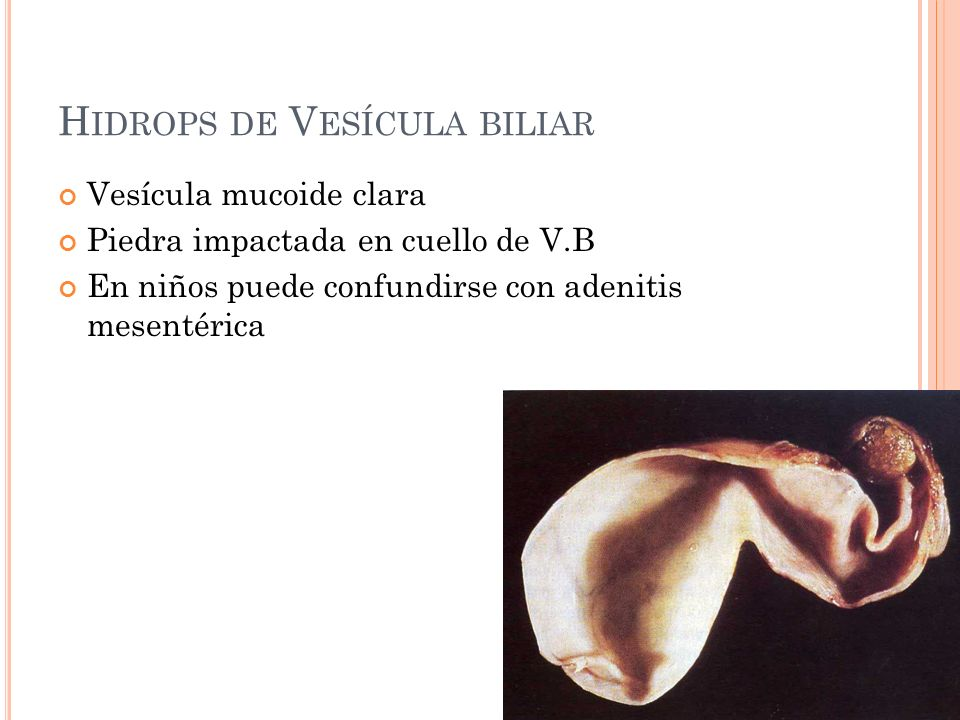 Hidrops de Vesícula biliar