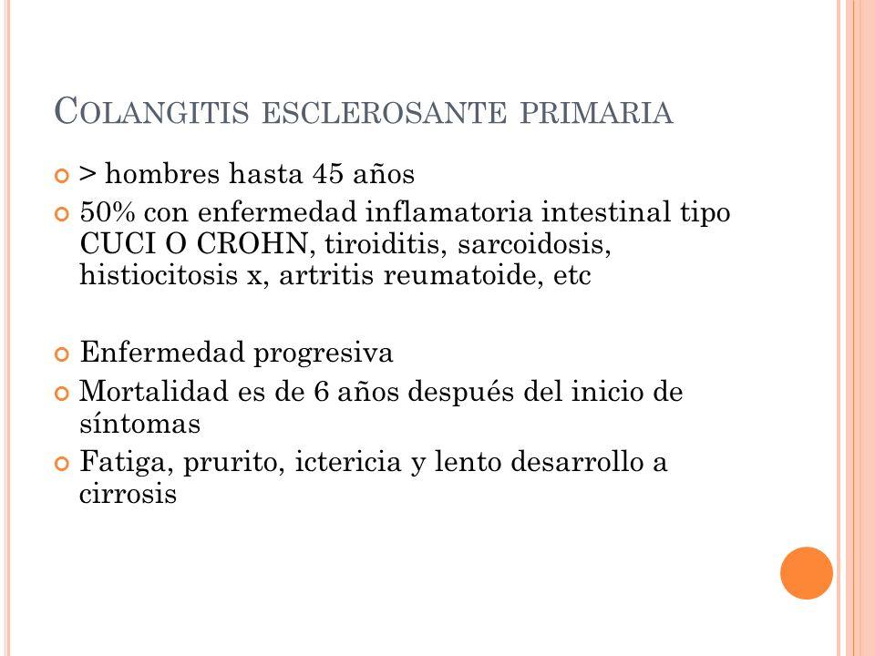 Colangitis esclerosante primaria