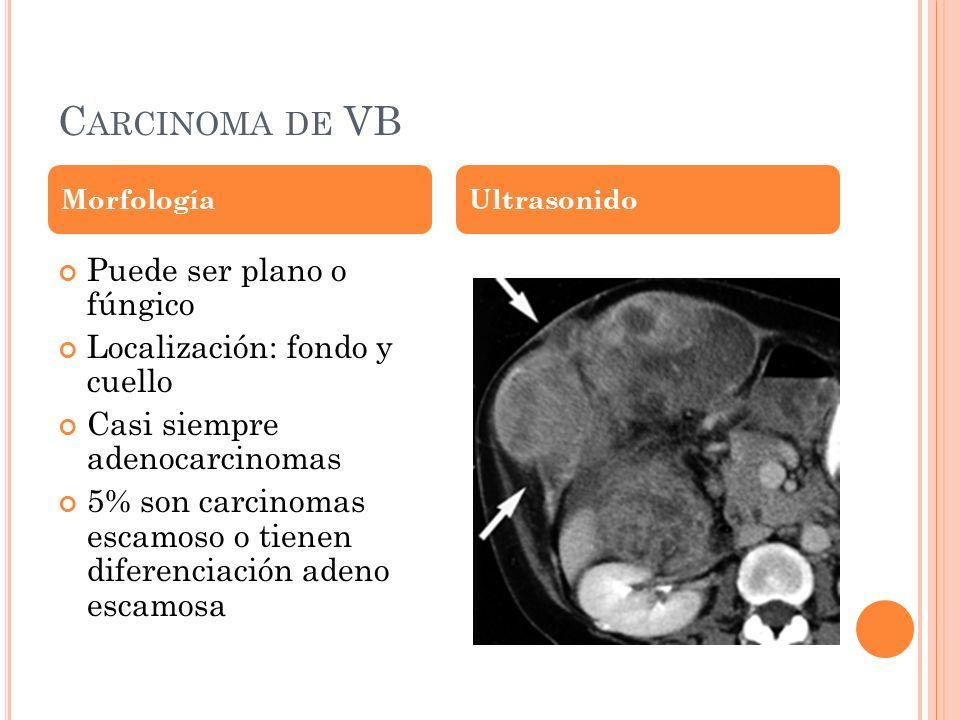 Carcinoma de VB Puede ser plano o fúngico Localización: fondo y cuello