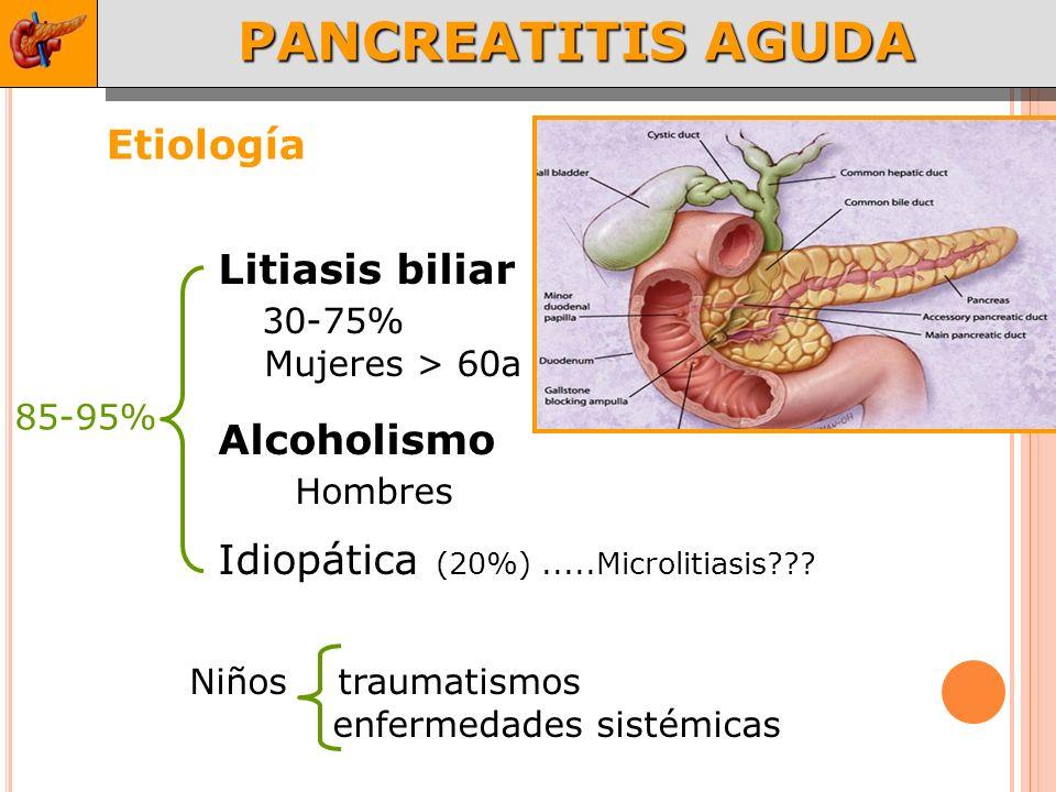 PANCREATITIS AGUDA Etiología Litiasis biliar 30-75% Alcoholismo