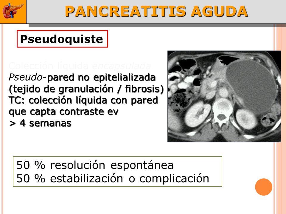 PANCREATITIS AGUDA Pseudoquiste 50 % resolución espontánea