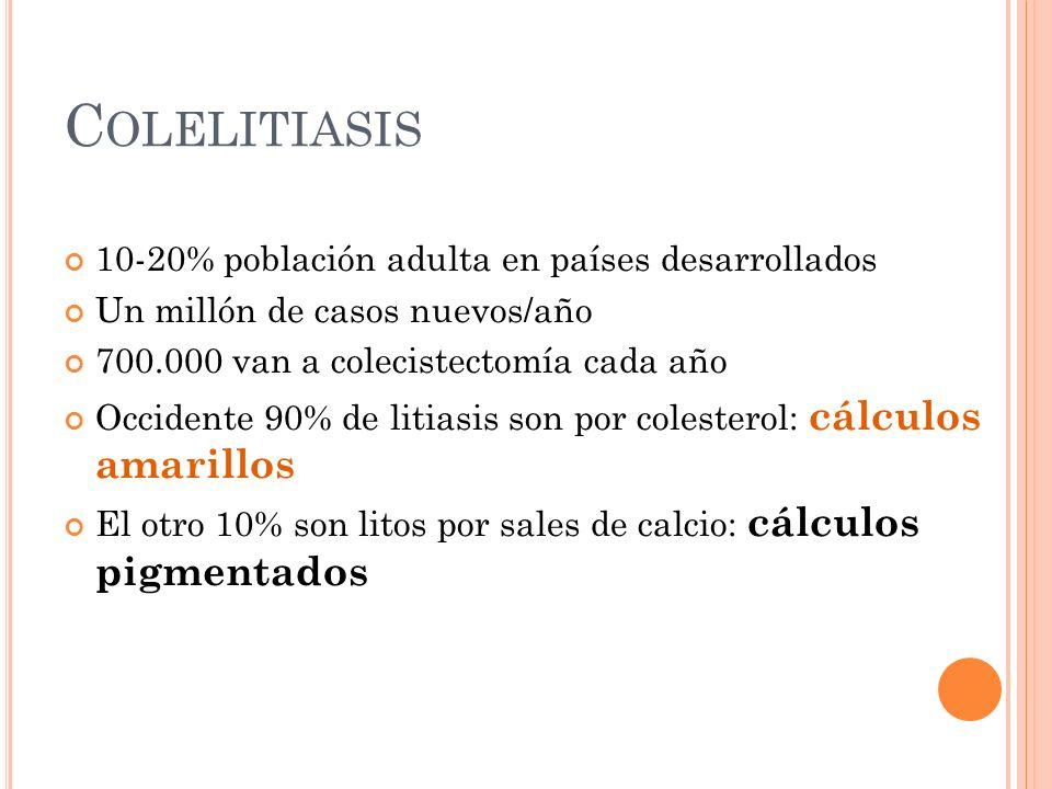 Colelitiasis 10-20% población adulta en países desarrollados