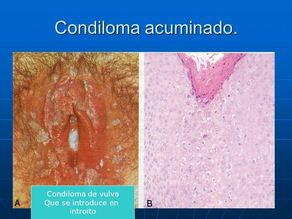 Condiloma acuminado. Condiloma de vulva Que se introduce en introito