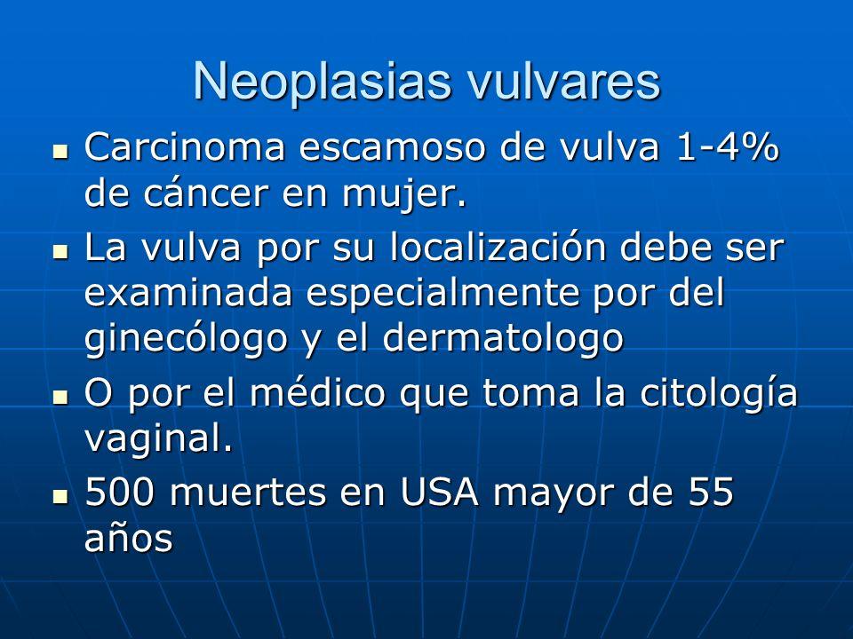 Neoplasias vulvares Carcinoma escamoso de vulva 1-4% de cáncer en mujer.