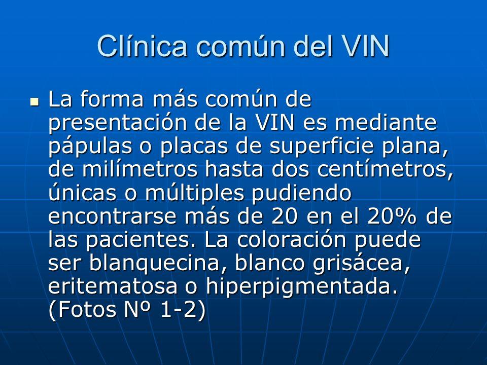 Clínica común del VIN