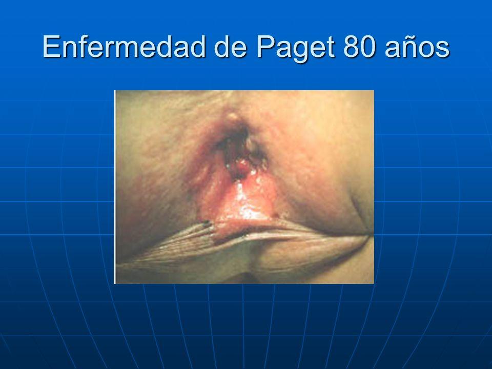 Enfermedad de Paget 80 años