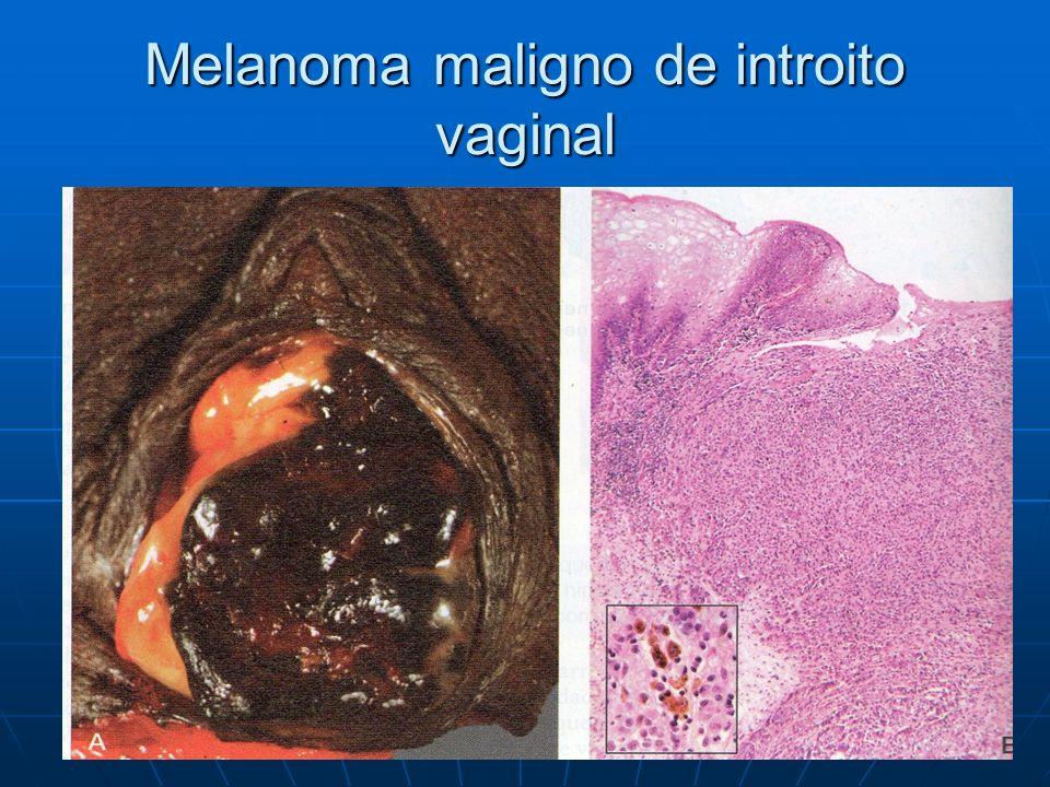 Melanoma maligno de introito vaginal