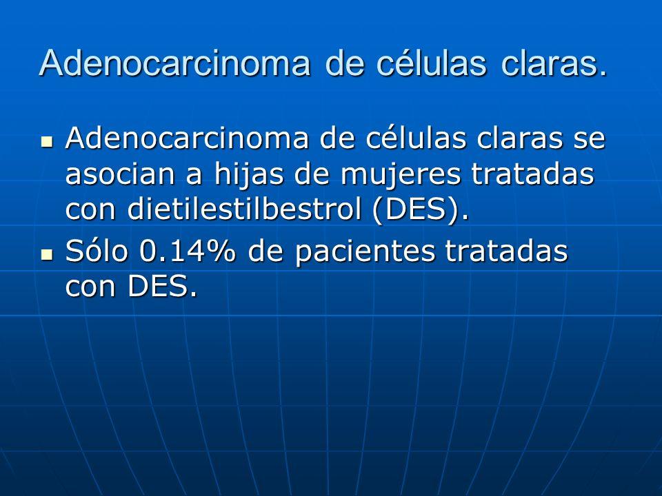 Adenocarcinoma de células claras.