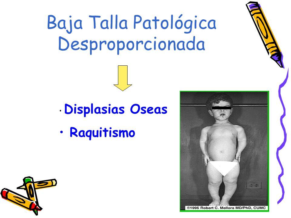 Baja Talla Patológica Desproporcionada