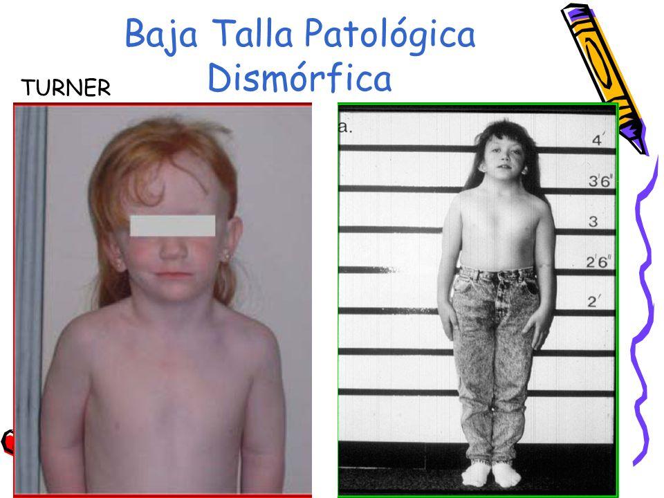 Baja Talla Patológica Dismórfica