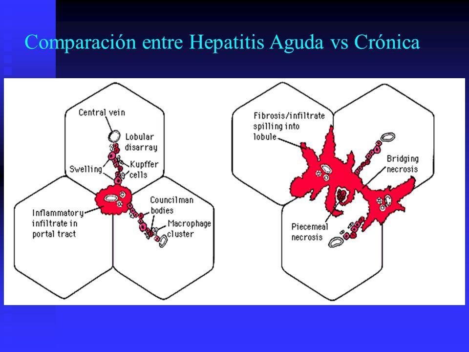 Comparación entre Hepatitis Aguda vs Crónica