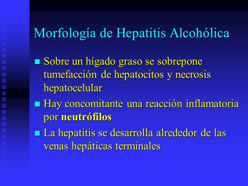 Morfología de Hepatitis Alcohólica