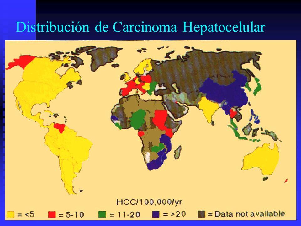 Distribución de Carcinoma Hepatocelular