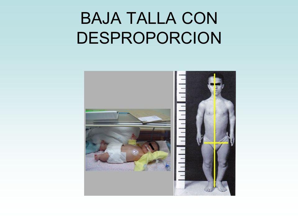 BAJA TALLA CON DESPROPORCION