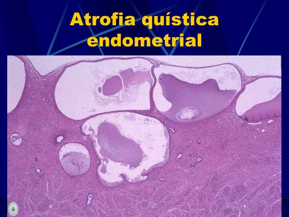 Atrofia quística endometrial